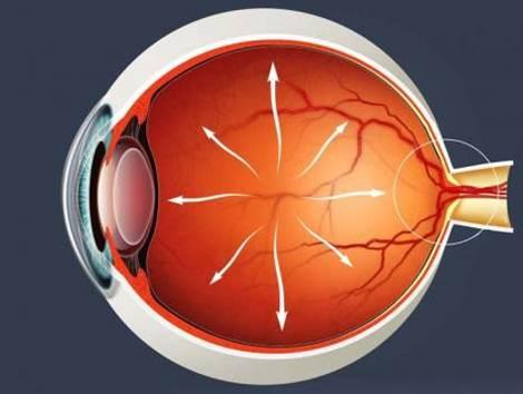 Γλαύκωμα Θεραπεία - Οφθαλμίατρος Θεσσαλονίκη Παναγιώτου Δημήτρης